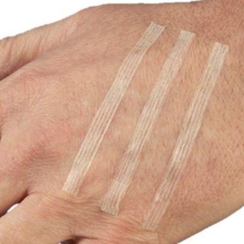 Skin Closures 1